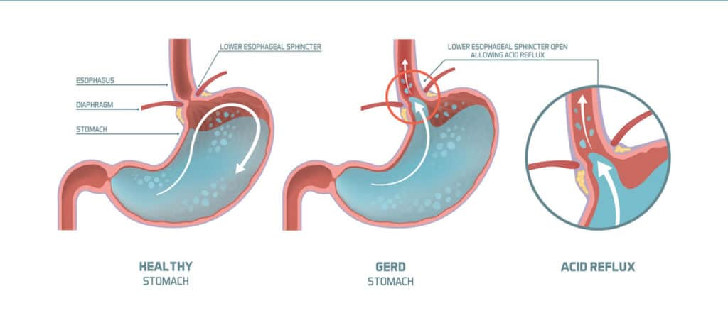 gerd infographic 1024x441 - How To Get Throw Up Taste Out Of Mouth