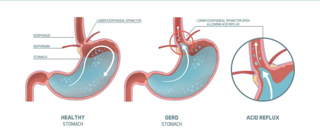gerd-infographic